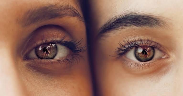 Remove Eye Dark Circles Naturally